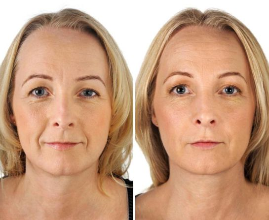 levantamiento de cejas antes y despues