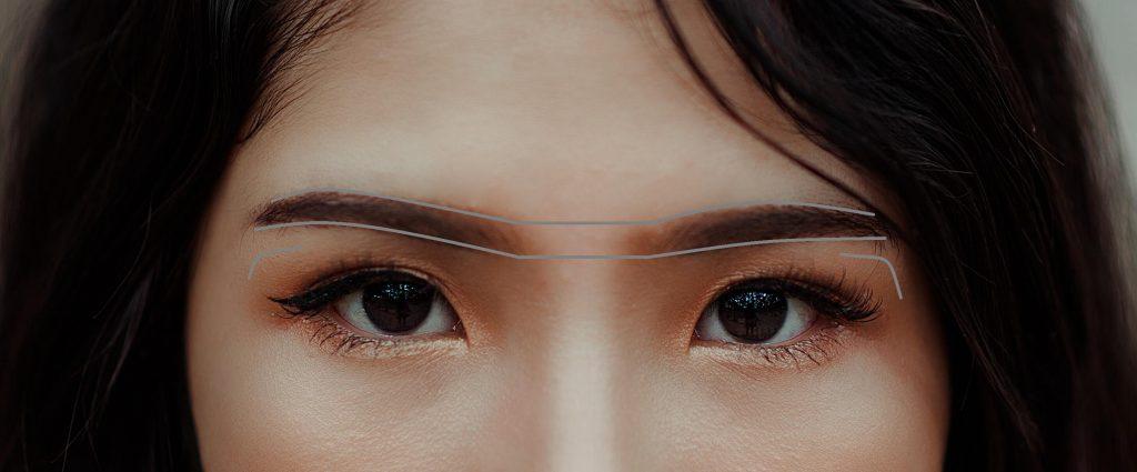 levantamiento de cejas con cirugía