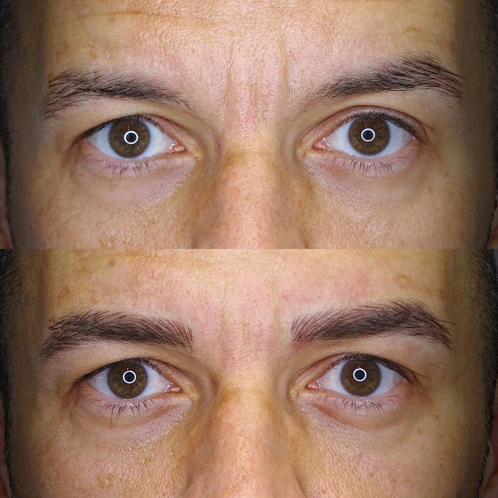 micropigmentacion en hombres