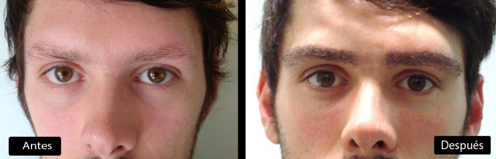 implante cejas antes y despues