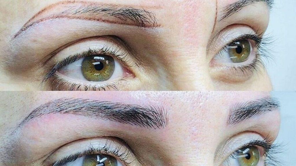 implante para cejas